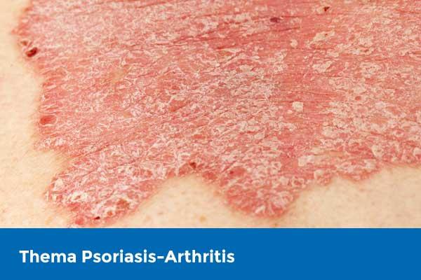 Aktuelle CME-Fortbildung zum Thema Psoriasis-Arthritis