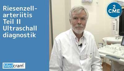 Riesenzellarteriitis – Teil II Ultraschalldiagnostik