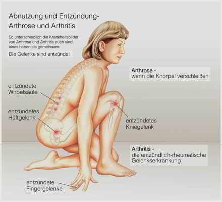 CME Video Fortbildung - Adhärenz in der Rheumatologie