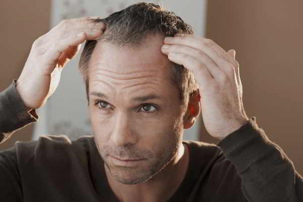 Gute Beratung bei Haarausfall - Ursachen und Therapie, z. B. mit Minoxidil