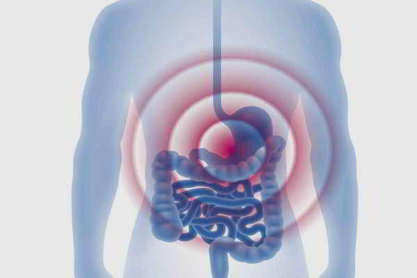 Kuhmilchallergie mit Manifestation im Gastrointestinaltrakt