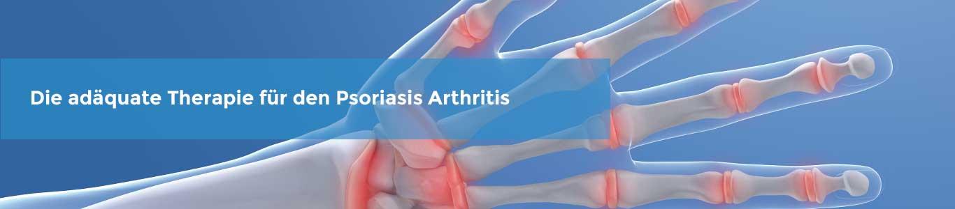 Zusammenhängse zwischen Psoriasis und Psoriasisarthritis (PsA)