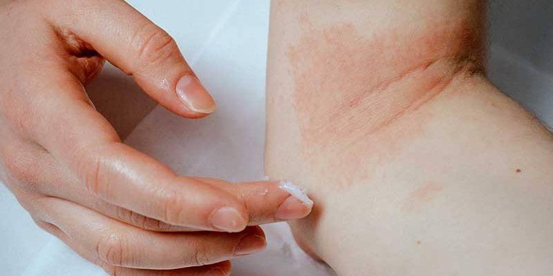 CME-Fortbildung Allergien