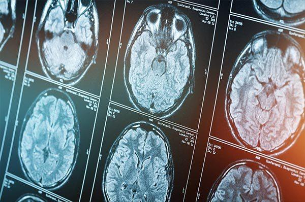 Parkinson-Syndrom (IPS) – Neue Aspekte zu Ätiologie und Pathophysiologie