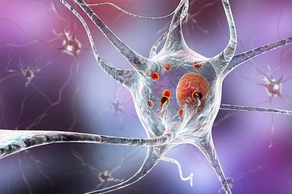 CME Kurs Parkinson und Bewegungsstörungen – Neues aus der Neuroimmunologie